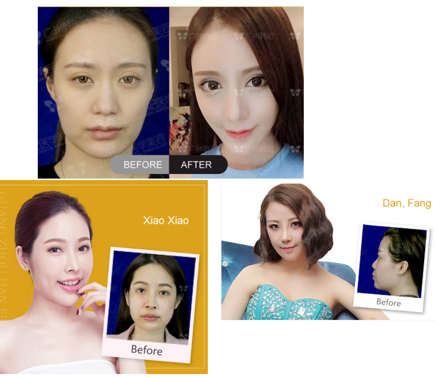 real rhinoplasty effect