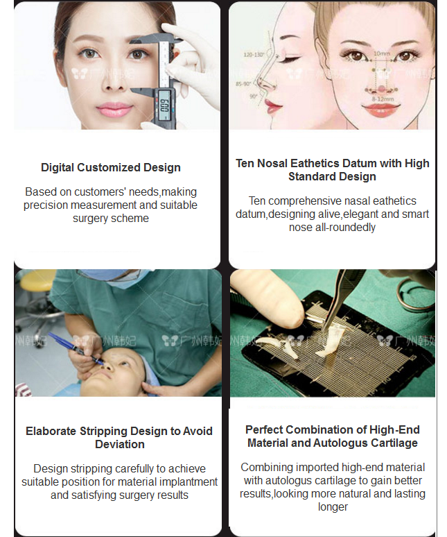 Hanfei Rhinoplasty advantages