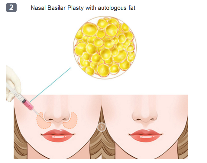 nasal base surgery method two