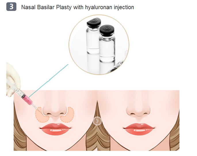 nasal base surgery method three