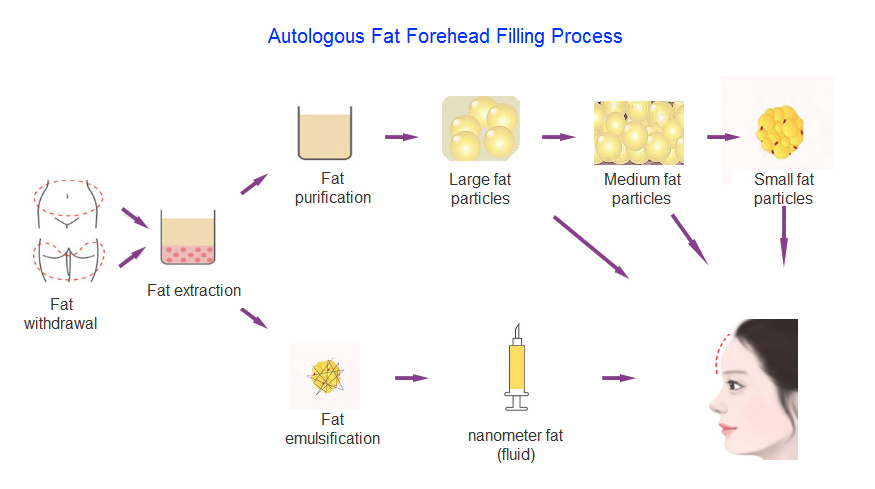 forehead fat filling process