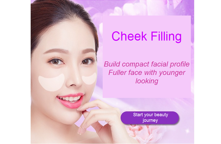 cheek filling