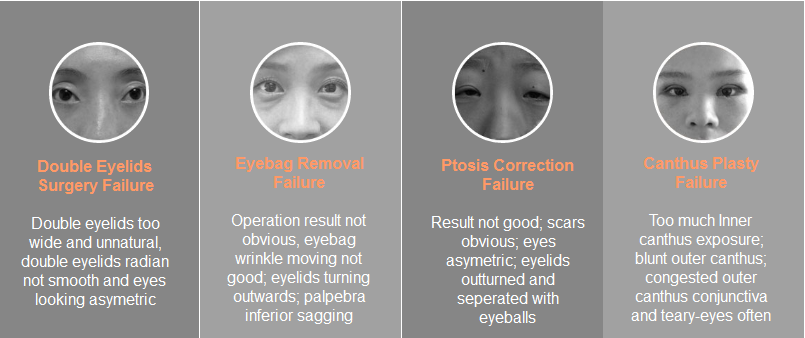 eye plasty revision