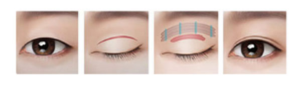 ptosis correction revision