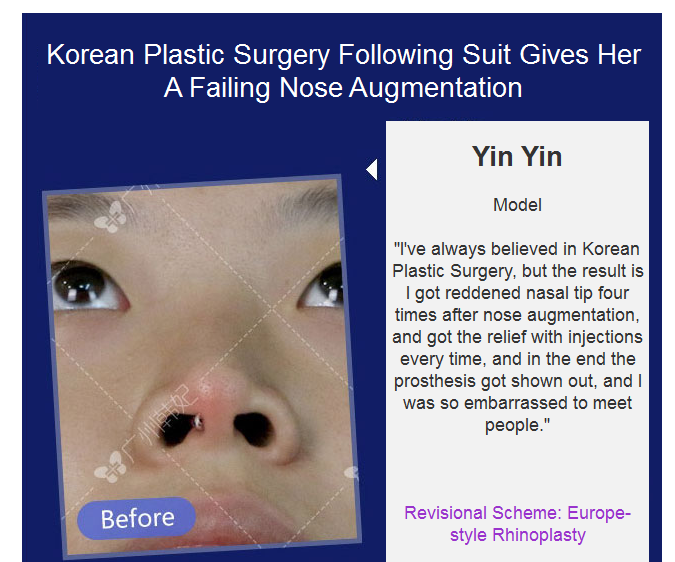 nose job revision
