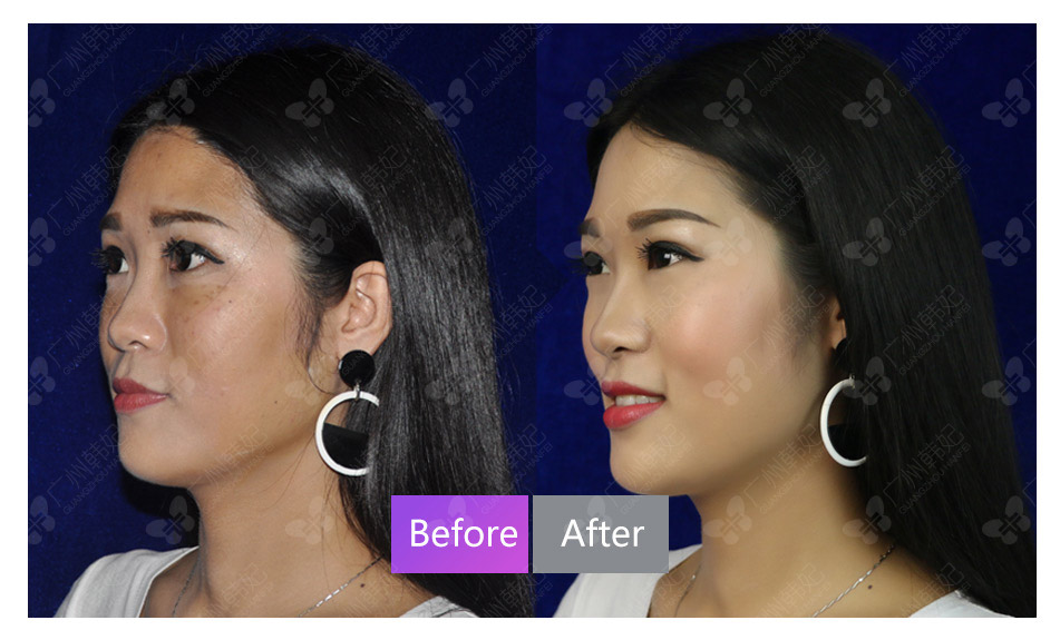 cosmetic surgeries or non-invasive treatments photos
