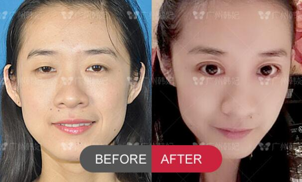 ptosis canthus eye plasty